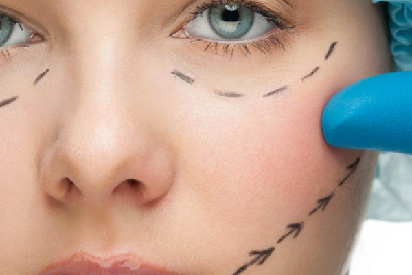 The Beginner's Guide to Face Lifts