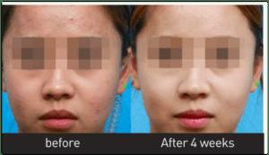 firming face Lyfe Medical Wellness