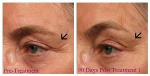 90 days treatment ultherapy