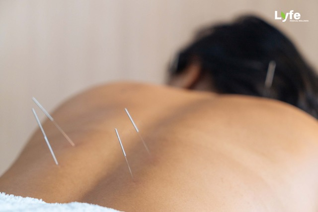 acupuncture by lyfe medical wellness