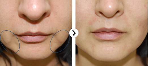 before and after ultraformer by lyfe emdical wellness