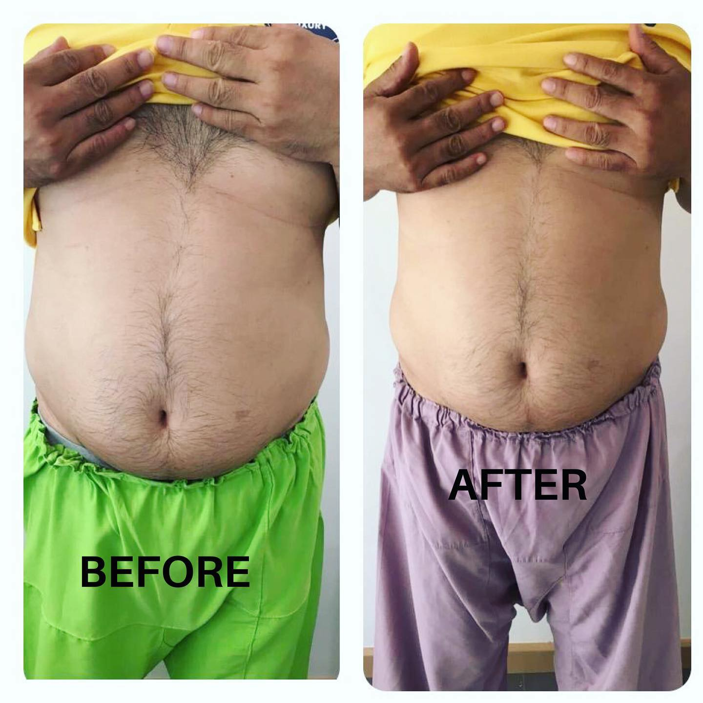 before and after sculpting lyfe medical wellness