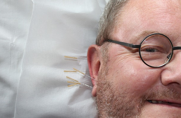 Acupuncture – Is It Right For Me?