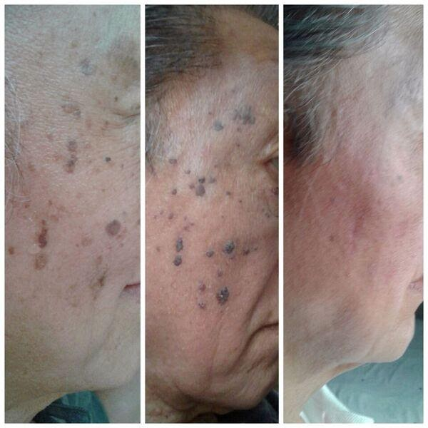 Skin tag removal as well as improved skin tone