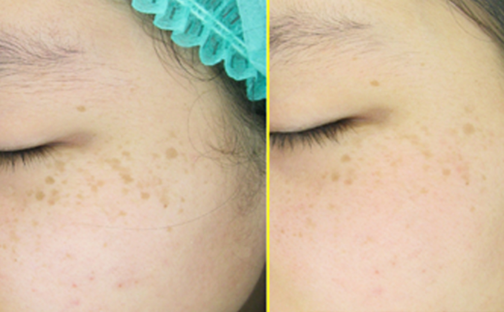 Left Cheek Freckles 19 years old female – 5 treatments