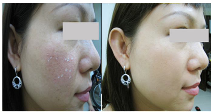 Atrophic Acne Scar 26 years old female