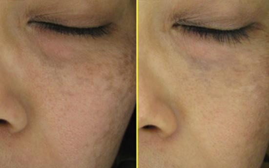 Malar Melasma Pigmentation 46 years old female - 8 treatments