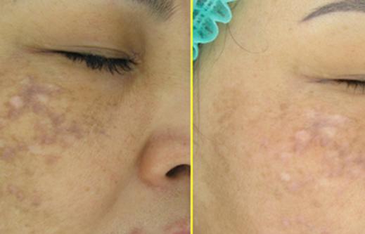 Malar Melasma Pigmentation 46 years old female – 7 treatments