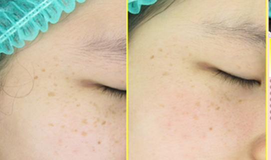 Right Cheek Freckles 19 years old female - 5 treatments