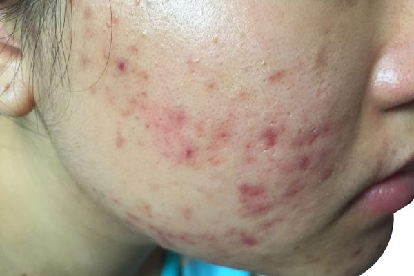 Addressing The Body's Common Skin Conditions